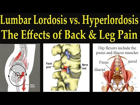Video Lumbar Lordosis vs Hyperlordosis / Facet Joint Syndrome Causing Back and Leg Pain - Dr Mandell