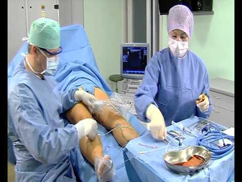 Лазерная операция по удалению варикозных вен