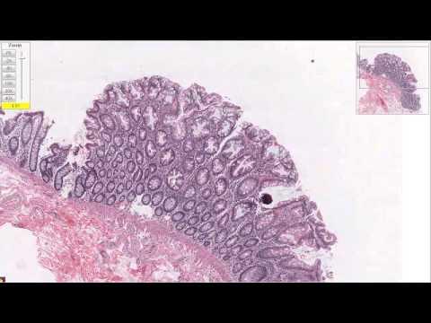 Показатели анализов крови при раке простаты