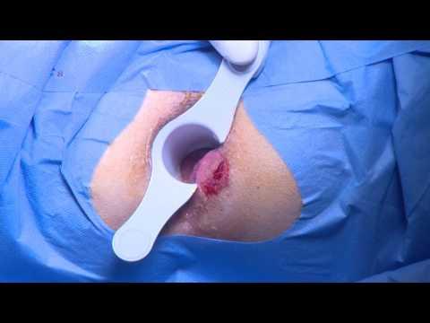 Injekcija kalcijevog klorida i prostatitisa