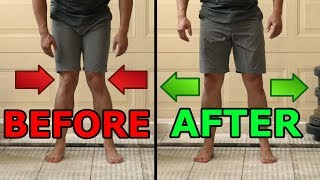 5 Ways To  Fix Knocked Knees   Tight Inner Thighs