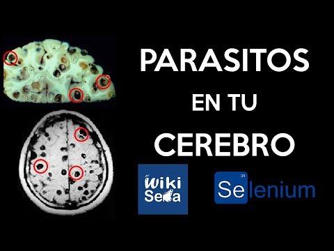 Parazitáktól való tisztítás módszerei