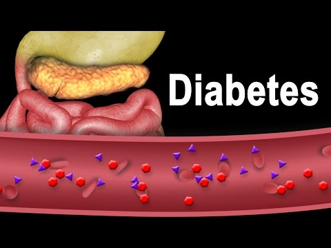 Registrieren Diabetes