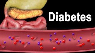 Diabetes Type 1 and Type 2, Animation.