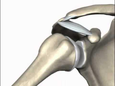Toracico forum sintomi osteocondrosi