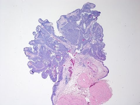 Icd 10 papilloma right lower lid