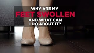 Why Are My Feet Swollen–and What Can I Do About It? | Health