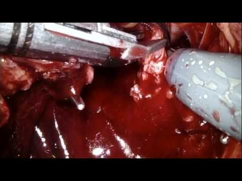 RS-RARP part 4 Neurovascular bundle Dissection