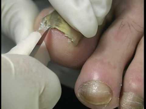 Na duży palec u nogi na narastanie skórze