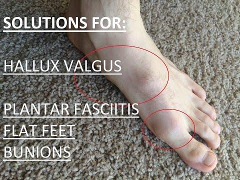 เท้าแบน valgus วางตัวทารก