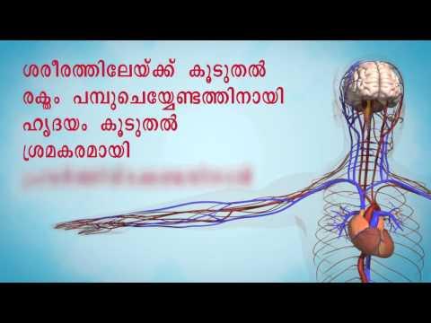 Hipertensión 1 grado de riesgo tratamiento 1 paso 2