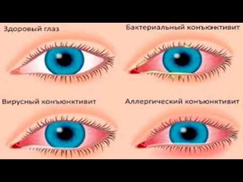 Зрение 0.75 один глаз