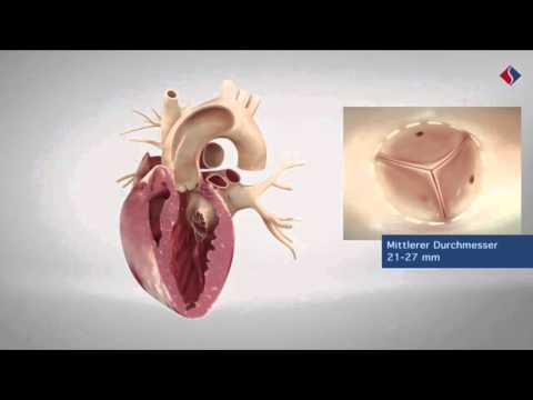 Die psychologischen Charakteristiken der Patientinnen von der Osteochondrose