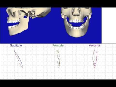 Elastico in vita osteocondrosi lombare