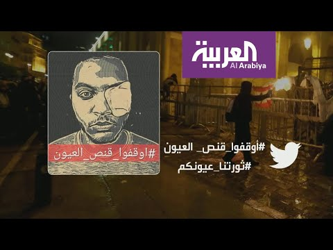 العرب اليوم - شاهد: ناشطون لبنانيون يغطون عينهم تضامنا ما شاب فقد عينه في مواجهات بيروت