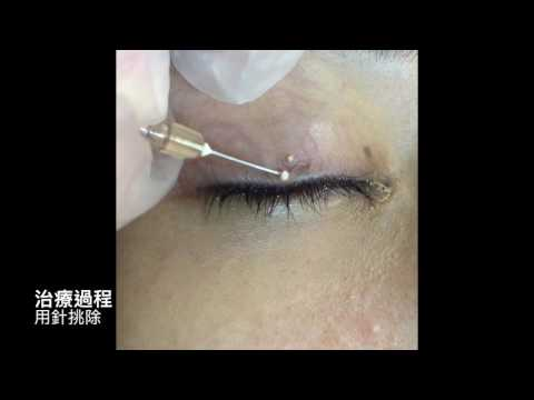 Tiny Eyelid Pimple!