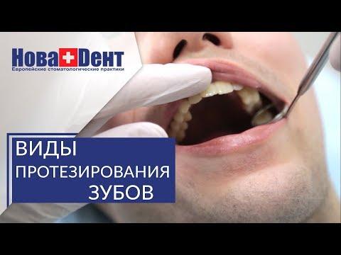 Протезирование зубов при полной потере. 🔬 Варианты протезирования при полной потере зубов. НоваДент.