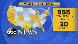 'Patient zero' identified in Michigan measles outbreak: Report l GMA