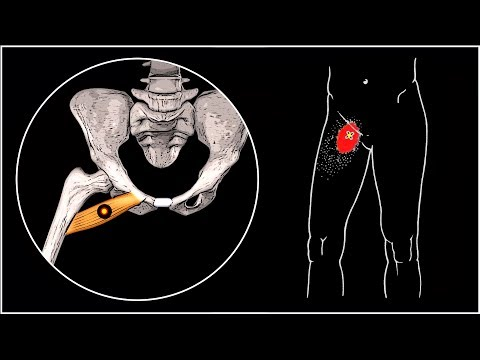 БОЛИТ ПАХ И БЕДРО 🔴 Гребенчатая мышца и миофасциальный болевой синдром ⭐ SLAVYOGA