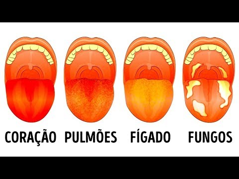 13 Problemas de saúde revelados pela língua