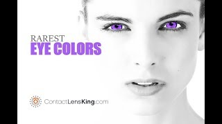 What Are The Rarest Eye Colors In The World