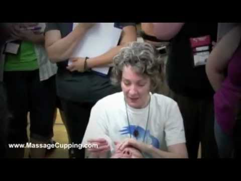 Massage Cupping Classes with Anita Shannon at World Massage ...