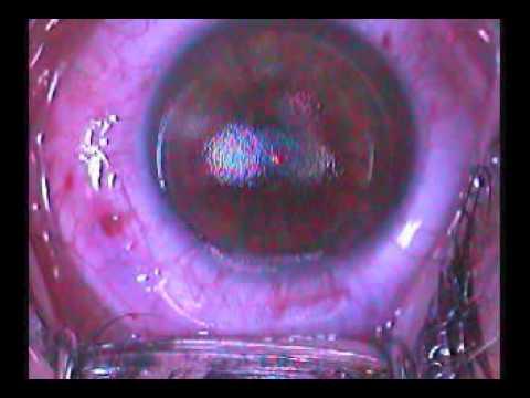 Video eximer laser