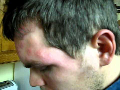 Dermatologist Moscow kuko halamang-singaw