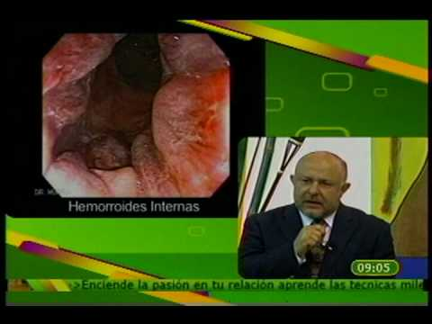 Intraductal papilloma vs duct ectasia