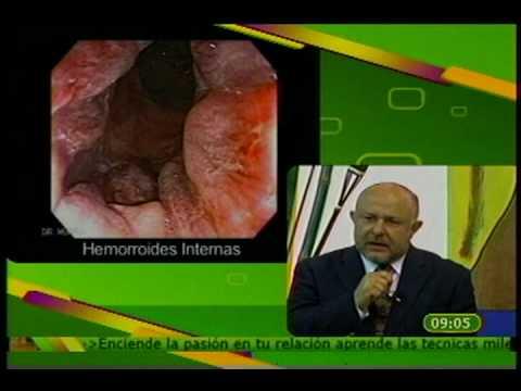 Tratamentul paraziților sistemului urogenital