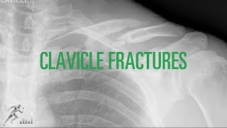 Clavicle fracture: Mechanism of injury and treatment options for this painful shoulder injury