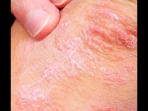 Łuszczycowe zapalenie stawów, z których