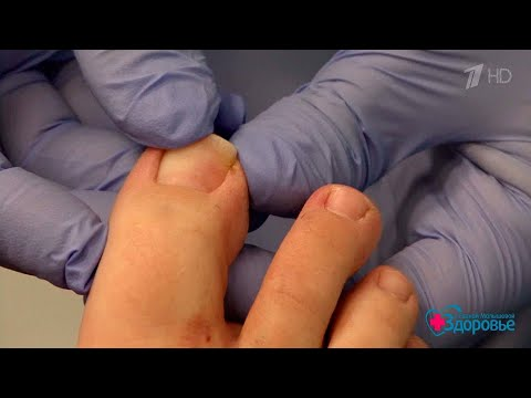 Вросший ноготь набольшом пальце. Здоровье. (10.09.2017)