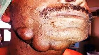 Multiple Sebaceous Cysts on Jaw  Back, Neck Cyst, Epidermal Cysts, Umbilicolith  More