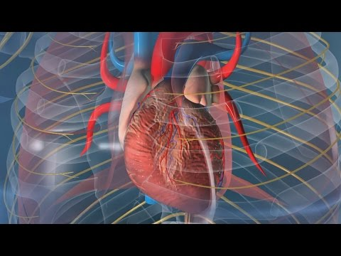 La perfusion de lhypertension graines daneth