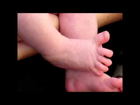 Video Babinski sign (UMN lesion)