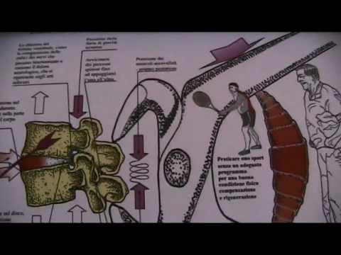 Storia medica in fisioterapia osteocondrosi