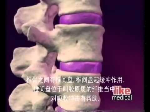 Радон лечение позвоночника