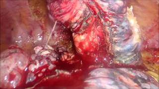 Uniportal LUL Wedge Resection complicated by stapler line dehiscence and bleeding