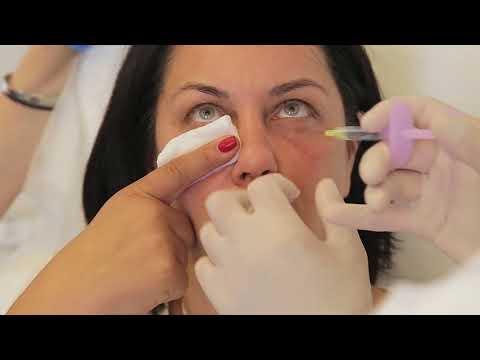 Лазерные операции глаз