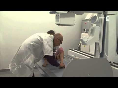 Estendery pour laugmentation du membre