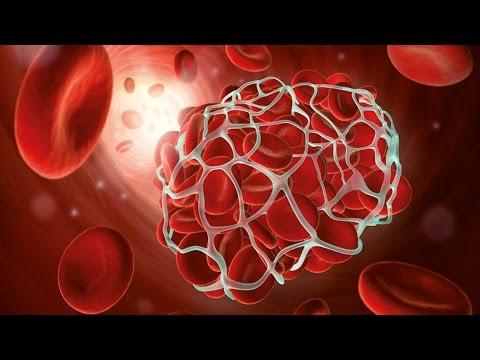 Welche Organe die Parasiten beeinflussen