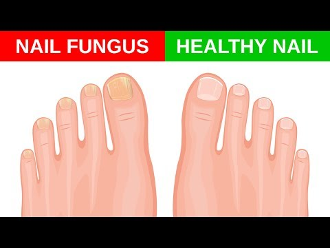 Die Behandlungen gribka der Nägel vom Apfelessig