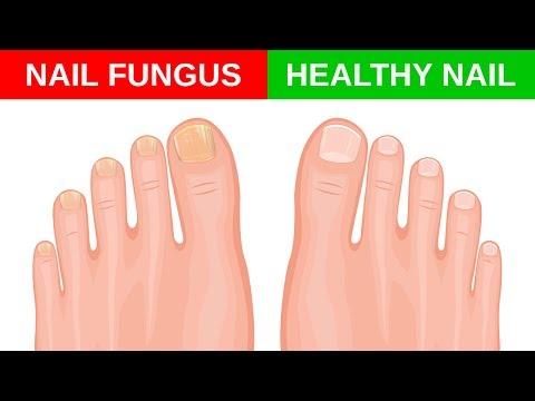 Fungus toenails kung saan pupunta