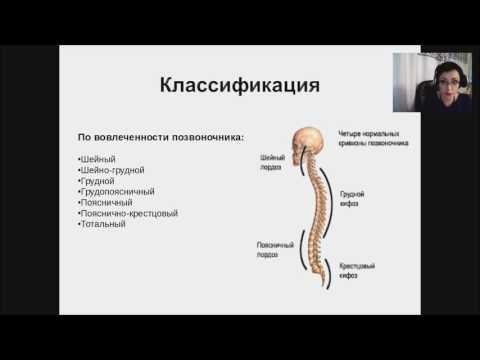 Сколиоз у детей: клиника диагностика лечение (вебинар)