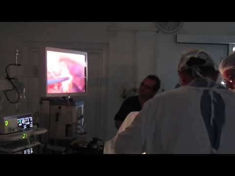Tratamentul prostatitei stațiuni Zheleznovodsk