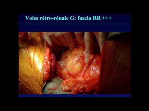 Le traitement laser des veines variqueuses