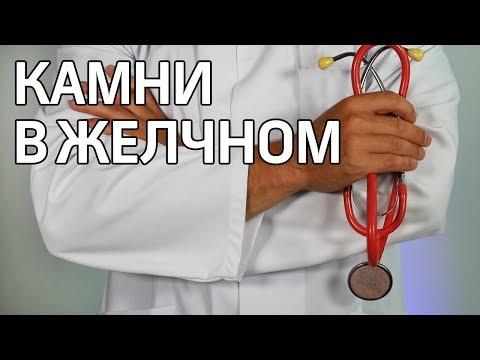 Хороший врач. Камни в желчном пузыре