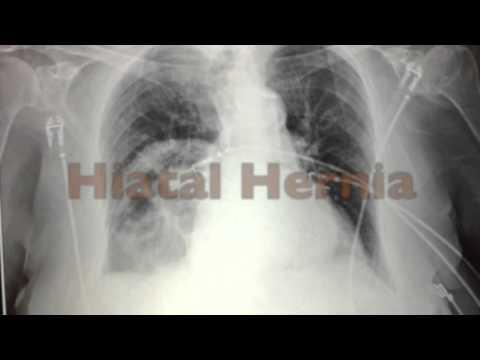 Papiloma humano y su tratamiento