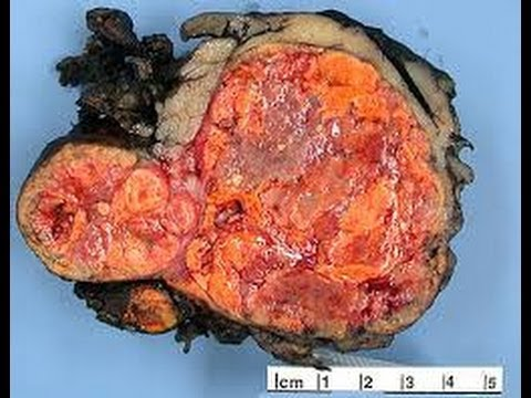 Dziurawiec zwyczajny leczenie hemoroidów